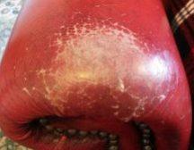 Leather restoration in Doncaster